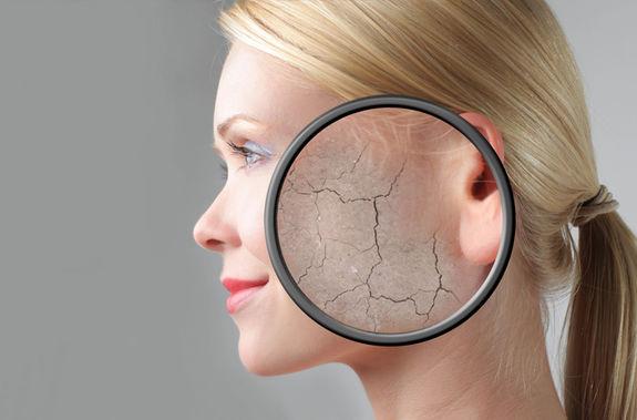 Лечение псориаза на лице в домашния условиях