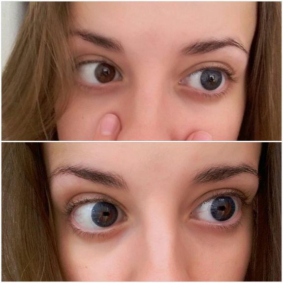 цветные линзы фото до и после